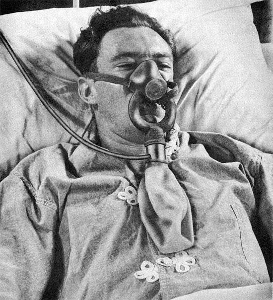 Astragalus and facial paralysis